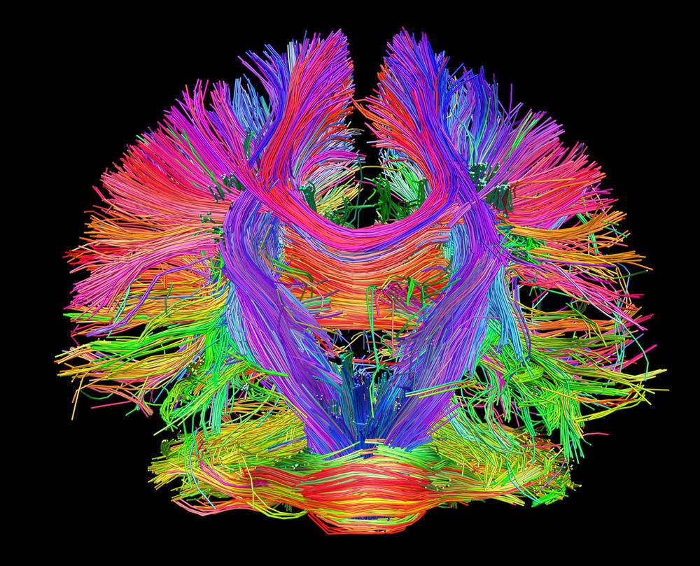 4485d-brainmap